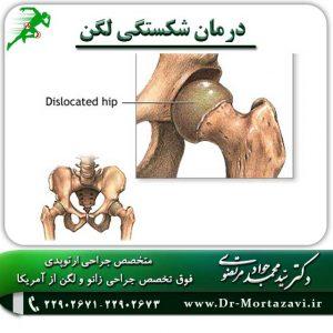 درمان-شکستگی-لگن-1