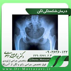درمان-شکستگی-لگن