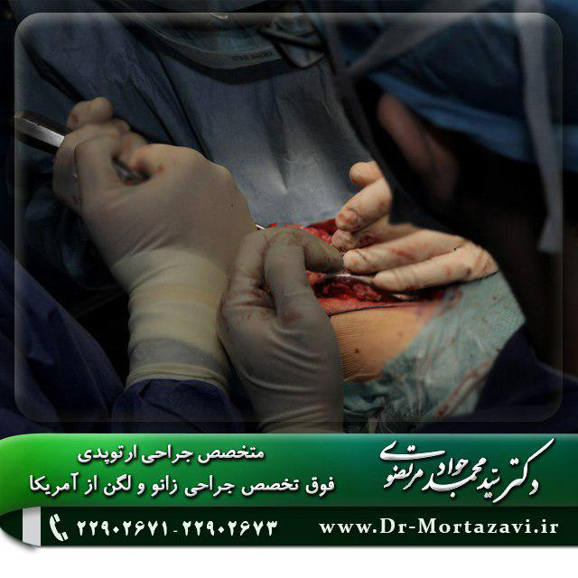 جراحی زانو