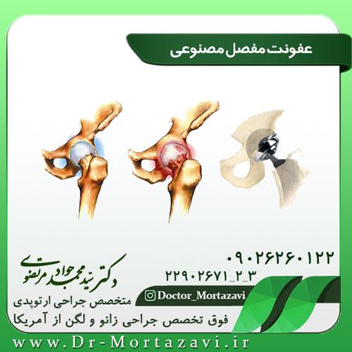 عفونت مفصل مصنوعی لگن و زانو