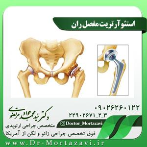 استئوآرتریت مفصل ران