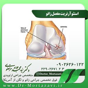 استئوآرتریت مفصل زانو