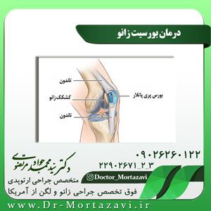 درمان بورسیت زانو