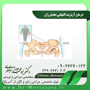 درمان آرتریت التهابی مفصل ران