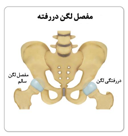 دررفتگی مفصل ران
