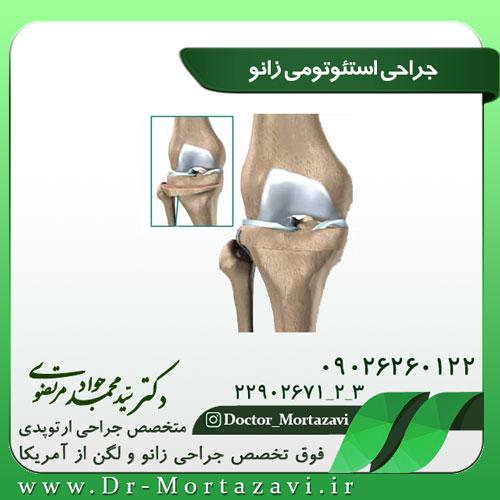 جراحی-استئوتومی-زانو